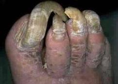 Gengibre contra um fungo de pé