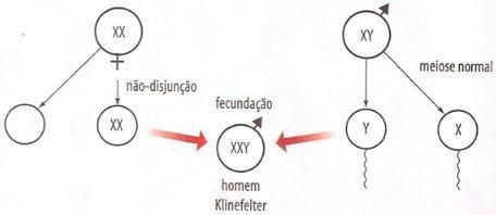 Causa da Síndrome de Klinefelter
