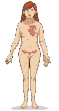 Características de um indivíduo com síndrome de Turner