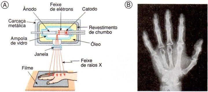 Equipamento de raios X.
