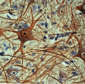 Os aspectos estrelados dos neurônios, com prolongamentos que formam um intrincado emaranhado.