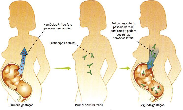Desenvolvimento da eritroblastose fetal.