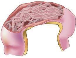 Lombrigas no intestino.