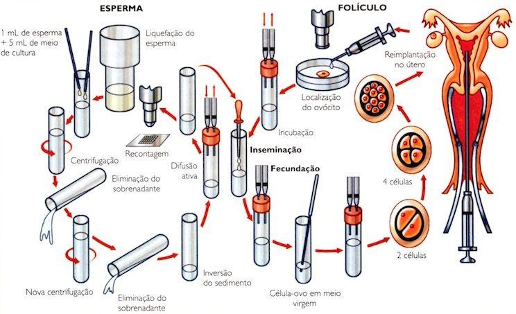 Etapas da fertilização in vitro.