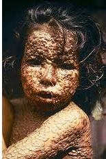 Criança com varíola, arma biológica