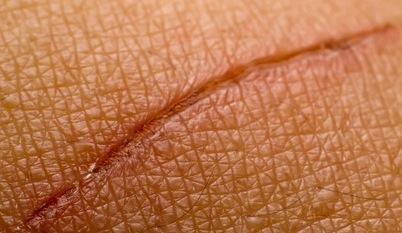 Cicatrização da pele