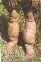 A Elefantíase é uma doença provocada por nematelmintos