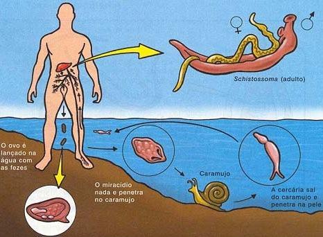 Contaminação pela esquistossomose.