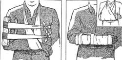 Fratura do braço