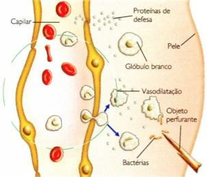 Reação inflamatória do sistema imunológico.